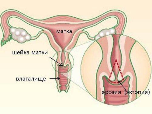 Эрозия шейки матки как причина обильных белых выделений перед месячными