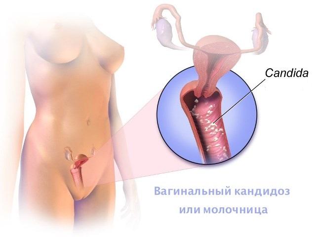 Задержка месячных при молочнице
