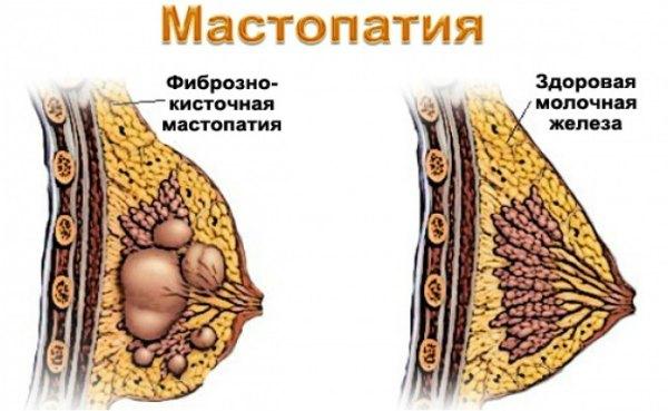Мастопатия - причина боли в груди после месячных