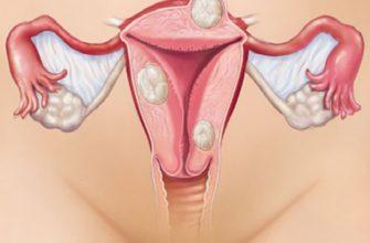 Симптомы миомы матки