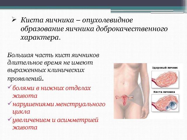 Симптомы кисты яичника