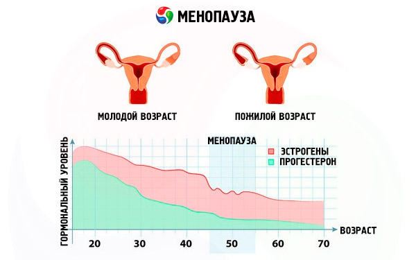 Менопауза