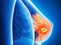 Лечение узловой мастопатии