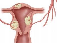 Причины миомы матки у женщин