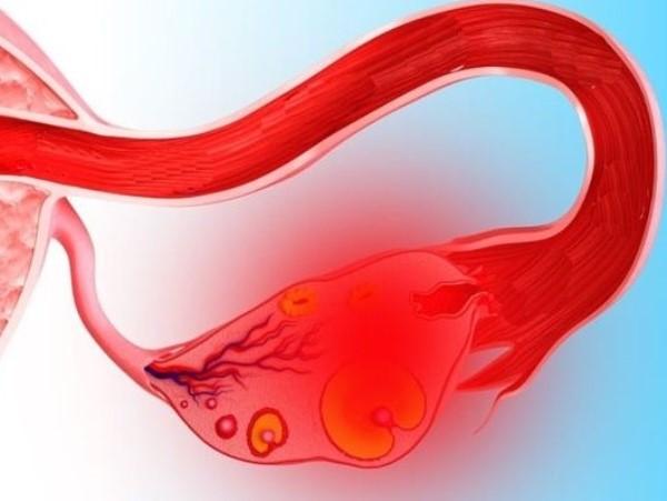 Разрыв кисты яичника