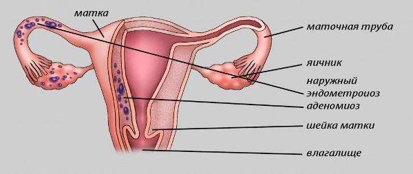 Эндометриоз и аденомиоз