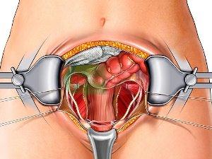 Удаление матки при миоме: виды операции