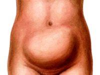 Увеличивается ли живот при миоме матки