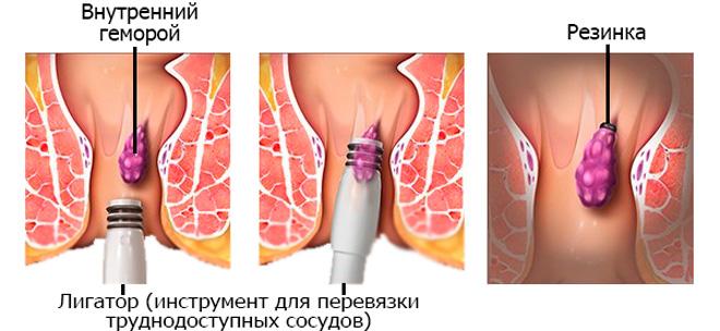 Лигирование геморроидальных узлов у беременных женщин