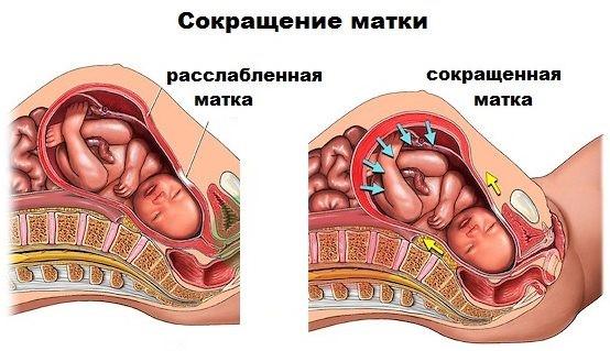 Сокращение матки при тонусе