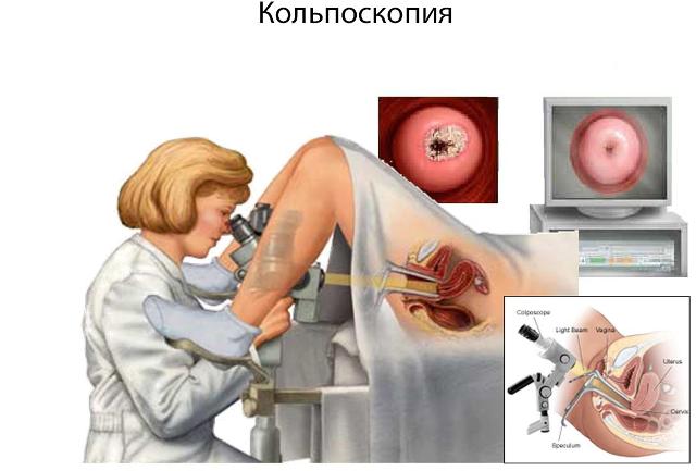 Кольпоскопия при эндометриозе