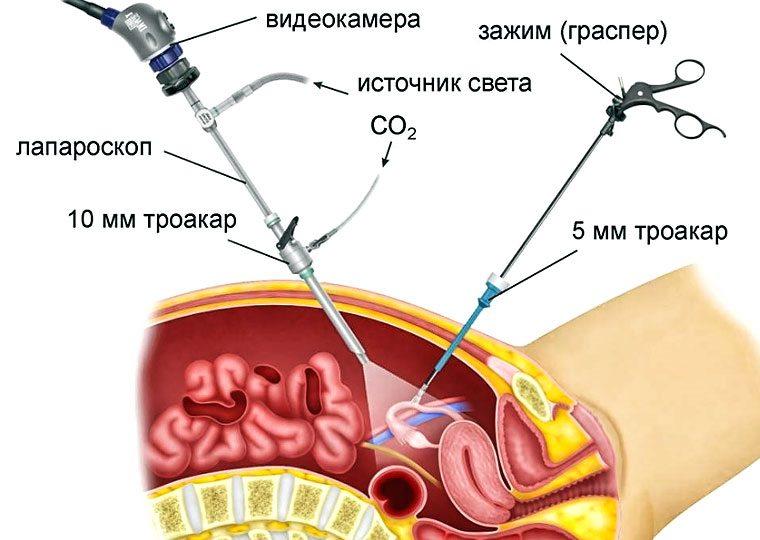 Лапароскопия при диагностике эндометриоза