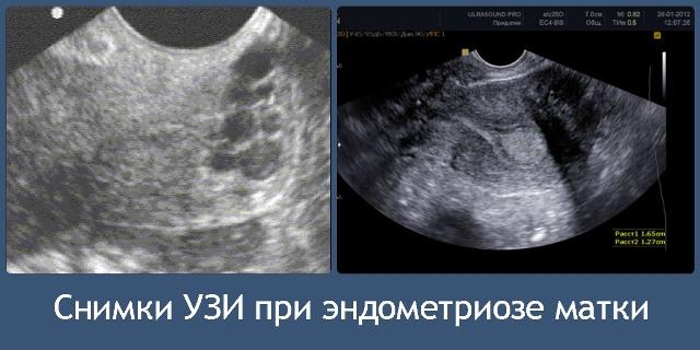 УЗИ при эндометриозе матки