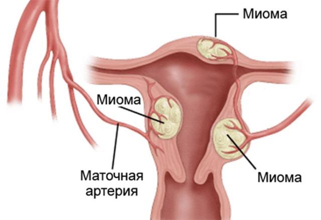 Миома матки - одна из причин маточного кровотечения