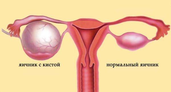 Последствия кисты яичника у девушек