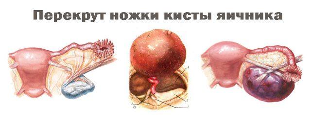 Перекрут кисты яичника - последствия