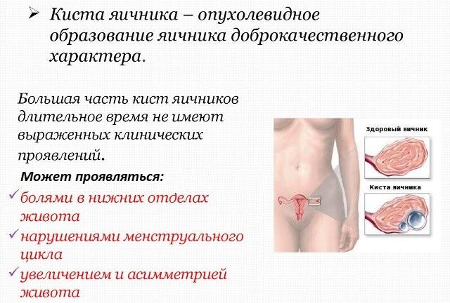 Ретенционная киста яичника в постменопаузе