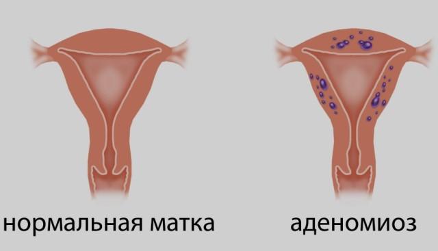 Внутренний эндометриоз 1 степени