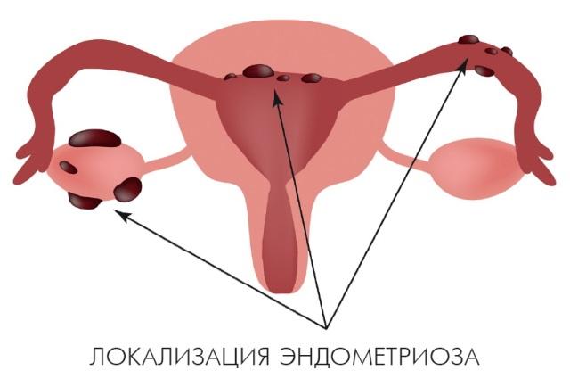 Эндометриоз последствия, если не лечить