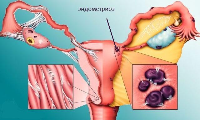 Эндометриоз матки - симптомы, причины и последствия