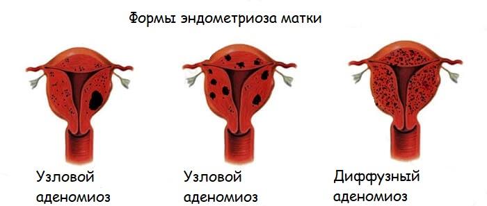 Эндометриоз 1 степени лечение