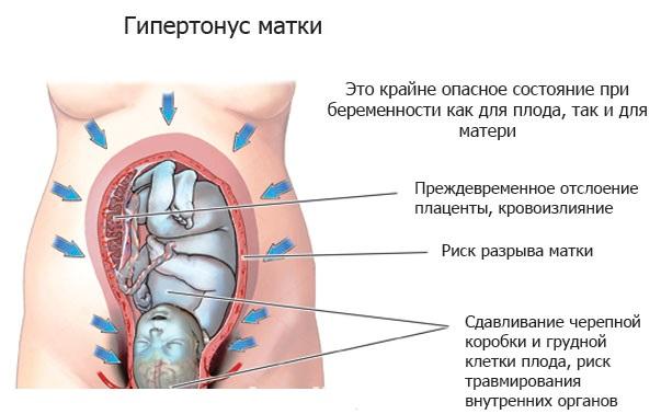 Повышенный тонус матки при беременности