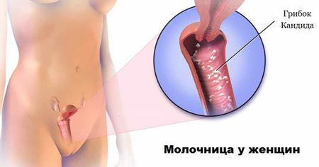 Молочница после антибиотиков как лечить