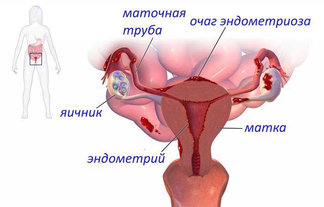 Может ли быть задержка месячных при эндометриозе