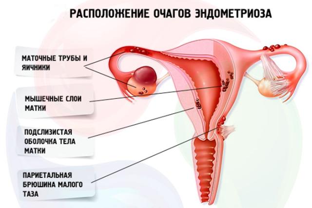 Какие выделения могут быть при эндометриозе