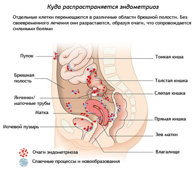 При эндометриозе болит поясница