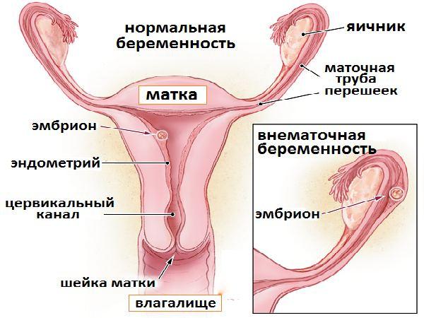 На первых неделях беременности тянет низ живота