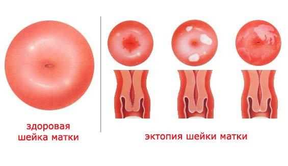 После месячных мажет кровью