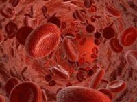 Сильное кровотечение при месячных - что делать