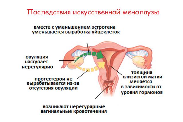 Искусственный климакс при эндометриозе