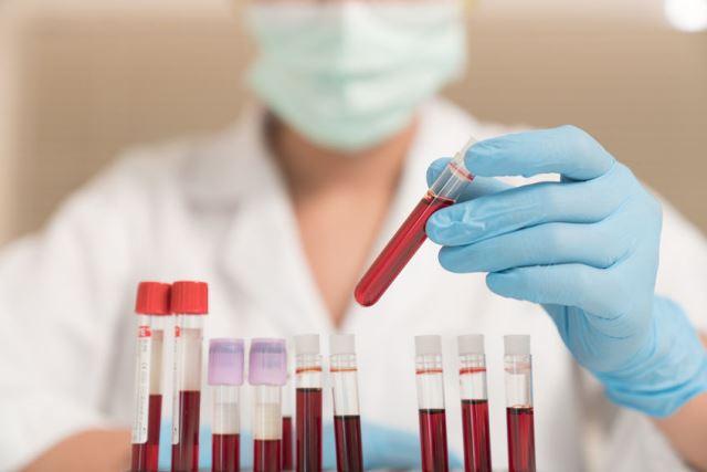 Анализ на цитомегаловирус