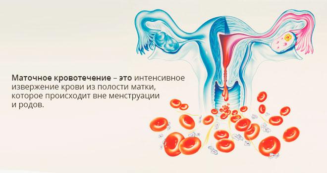 Маточное кровотечение при климаксе