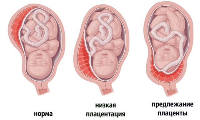 Низкая плацента - последствия