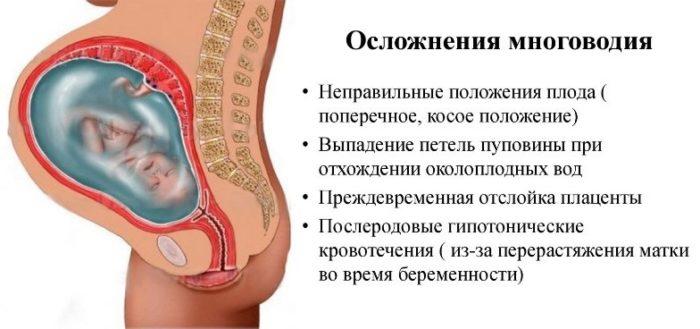 Осложнения многоводия при беременности