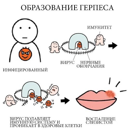 Вирус герпеса при беременности