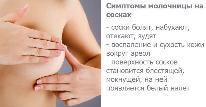 Симптомы молочницы на сосках