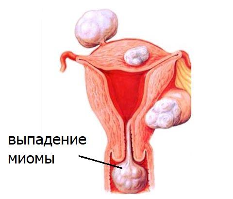 Выпадение миомы матки