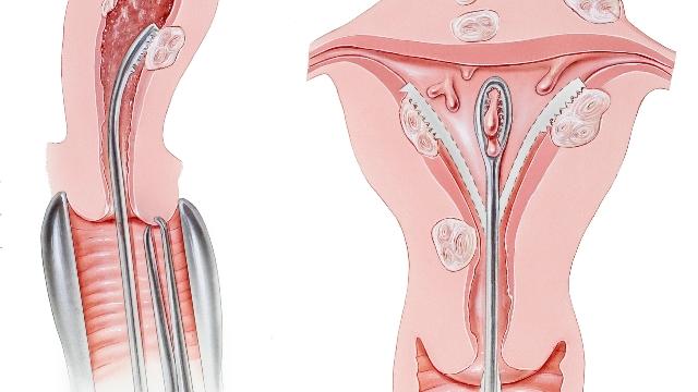 Выскабливание полости матки при миоме
