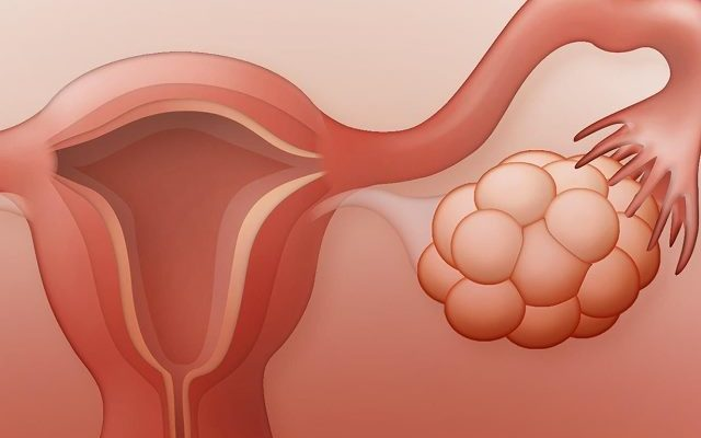 Многокамерная киста яичника