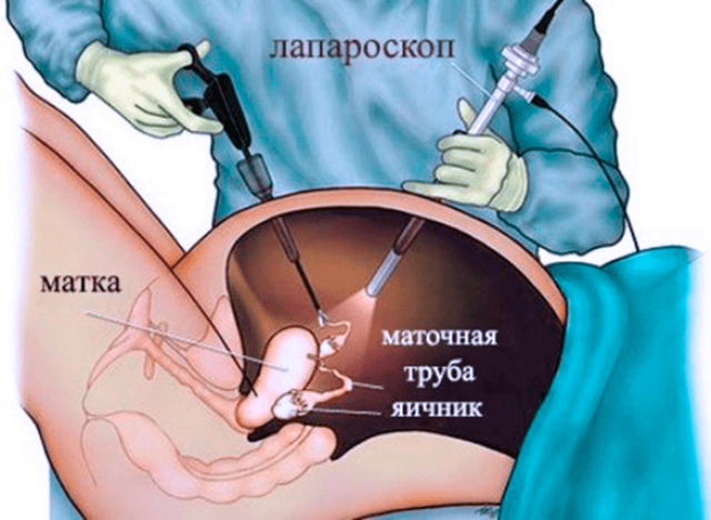 Операция лапароскопии при кисте яичника