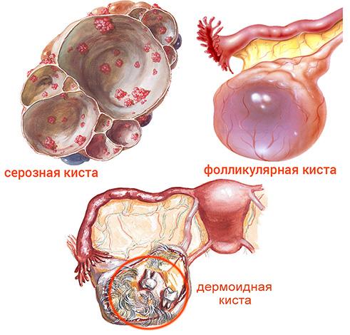 Виды кисты яичника