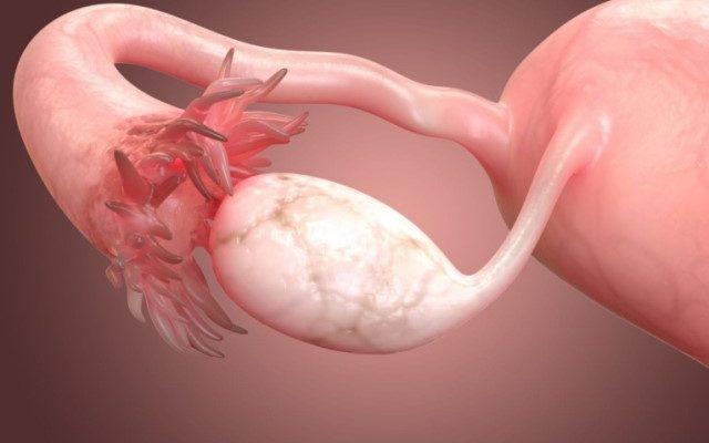 Киста яичника - можно ли забеременеть