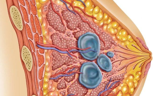 Железистая мастопатия