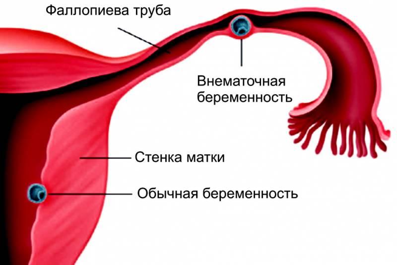 Как происходит внематочная беременность
